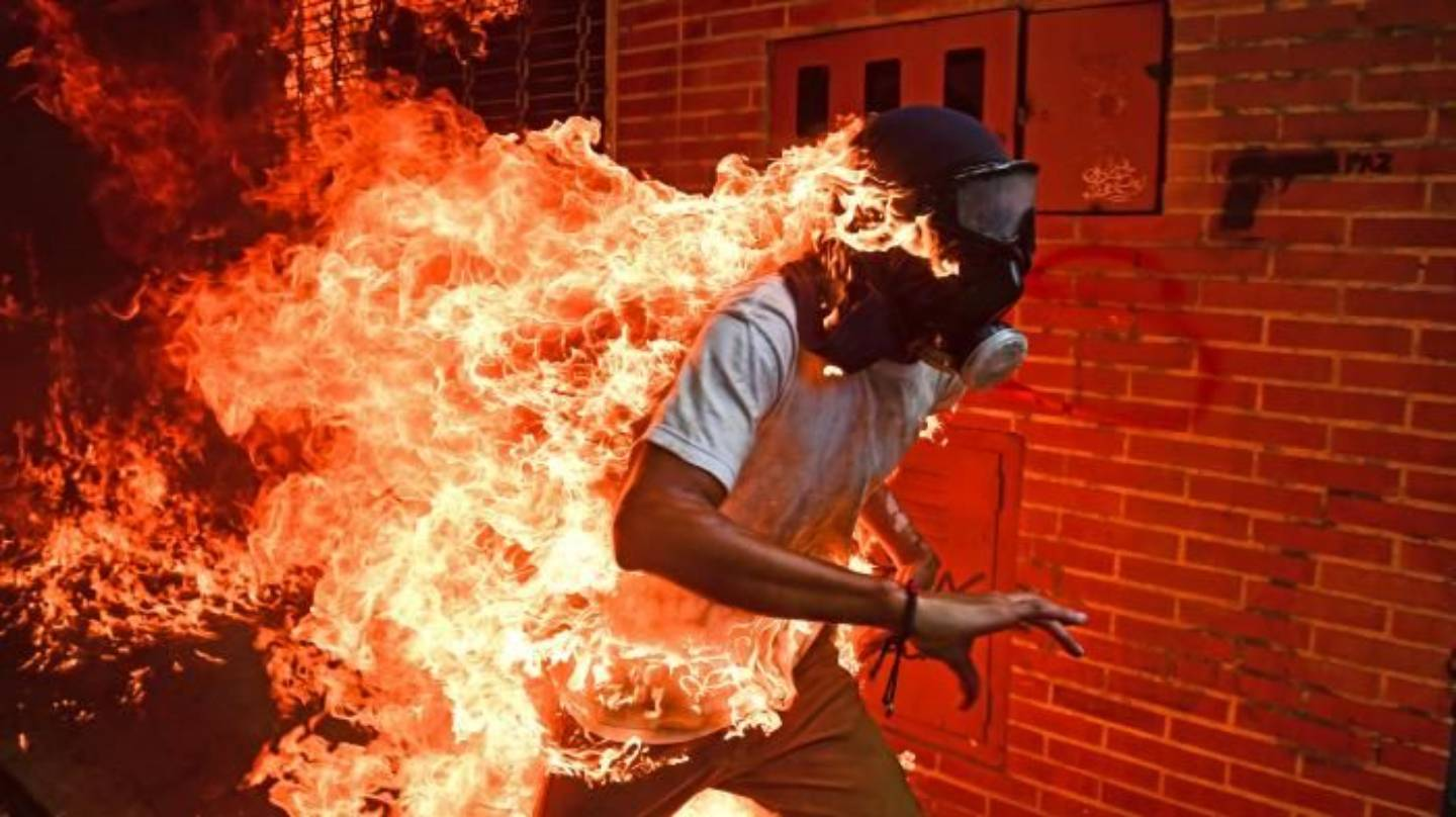 Protester on fire during a protest in Venezuela